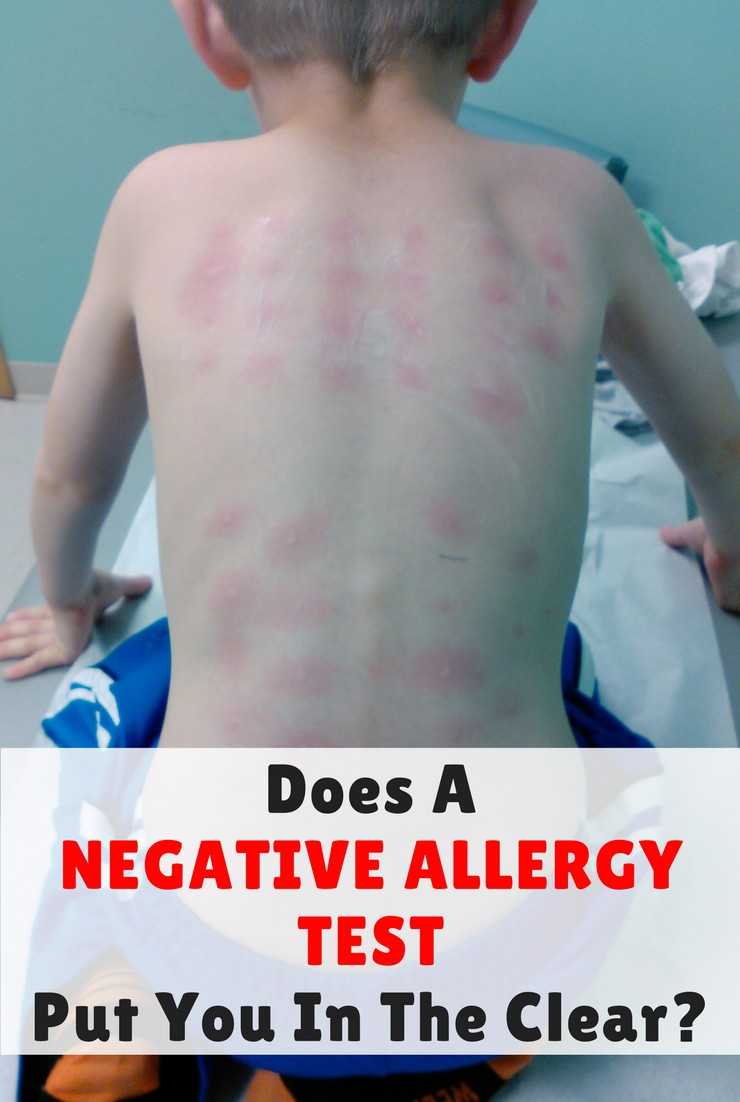 Does A Negative Allergy Test Put You In The Clear Simple